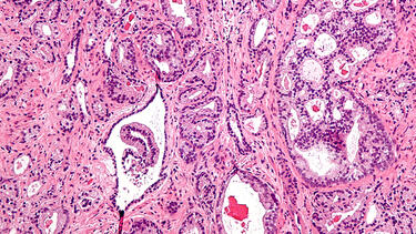 A micrograph showing prostatic acinar adenocarcinoma, the most common form of prostate cancer. Photo: Nephron/Wikimedia.